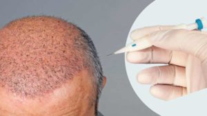 DHI Haartransplantation Türkei - İstanbul - DHI Kosten
