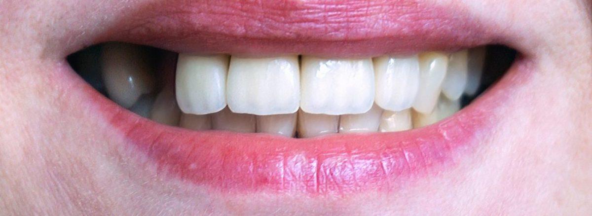 Risiken und Nebenwirkungen bei Zahnimplantaten