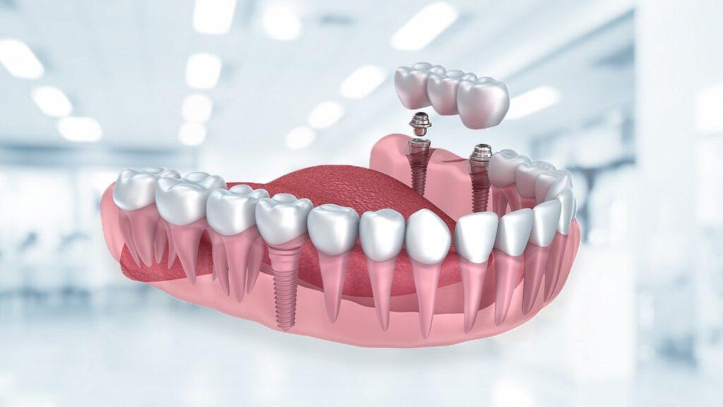 Zahnimplantat Türkei - Zahnimplantate Kosten & Ablauf & Schmerzen