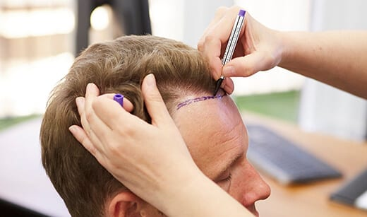Die wichtigsten Dinge zu wissen vor einer Haartransplantation