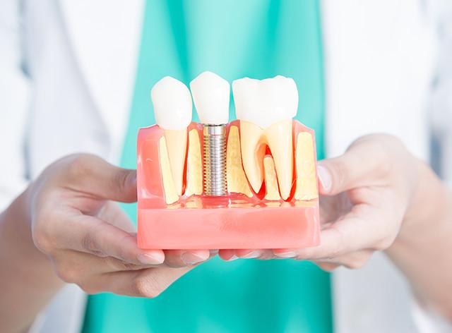Wie läuft eine Zahnimplantat Behandlung in der Türkei ab?