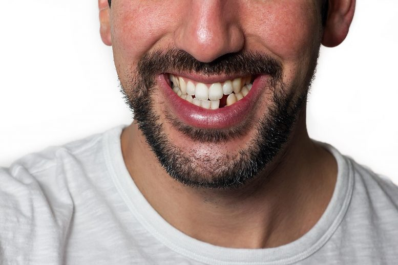 Do I need implants for every lost tooth?