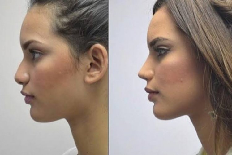 Rhinoplasty Turkey (nose job) before after pictures & results